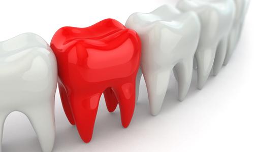 自家歯牙移植